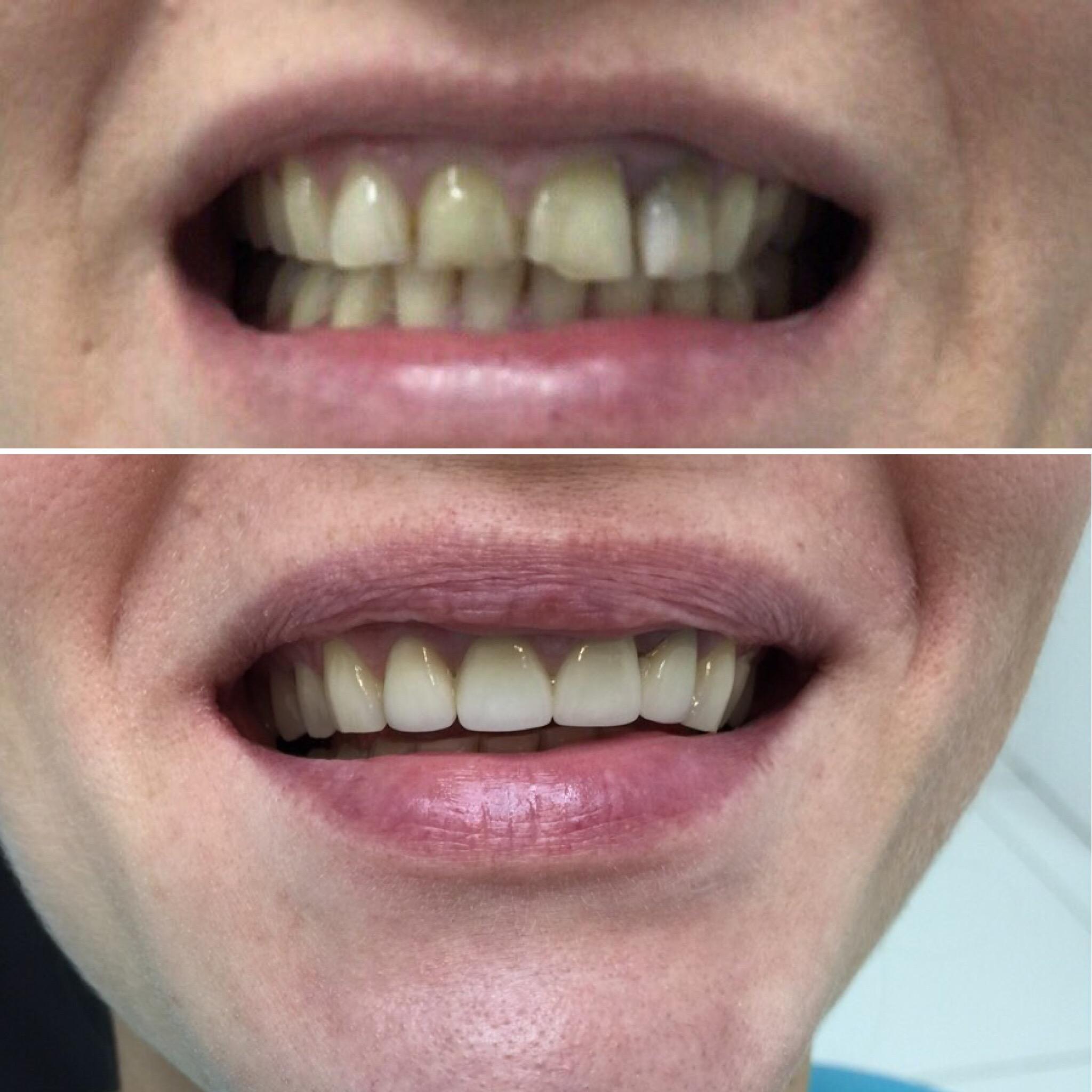 Как сделать керамические зубы