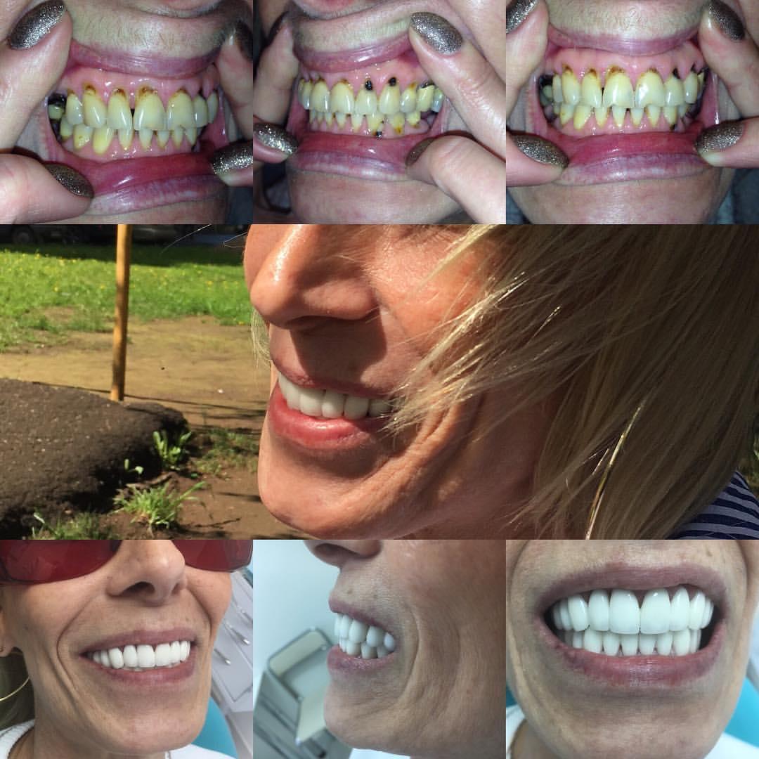 красивые коронки на передние зубы