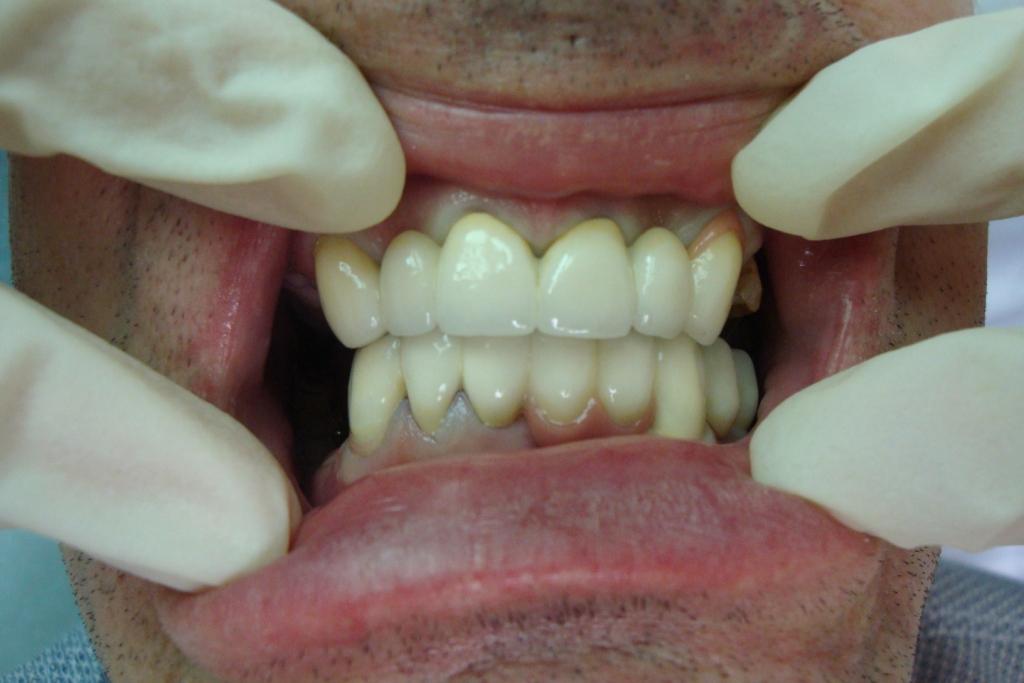 сколько стоят виниры на зубы во владикавказе