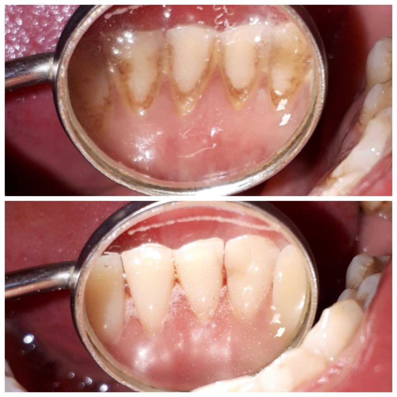 Удалять зубной камень в домашних условиях 385